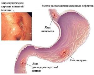 Что хуже язва желудка или язва двенадцатиперстной кишки