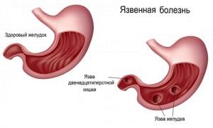Как заработать язву желудка